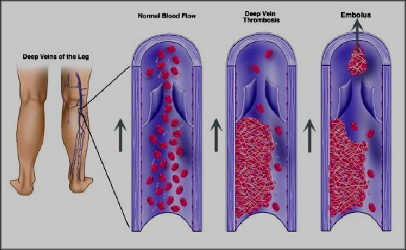 what is dvt, Human Body